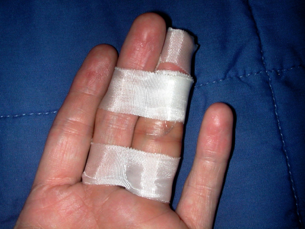 Broken Ring Finger Drawing Hand Josh Neufeld Comix And Stories